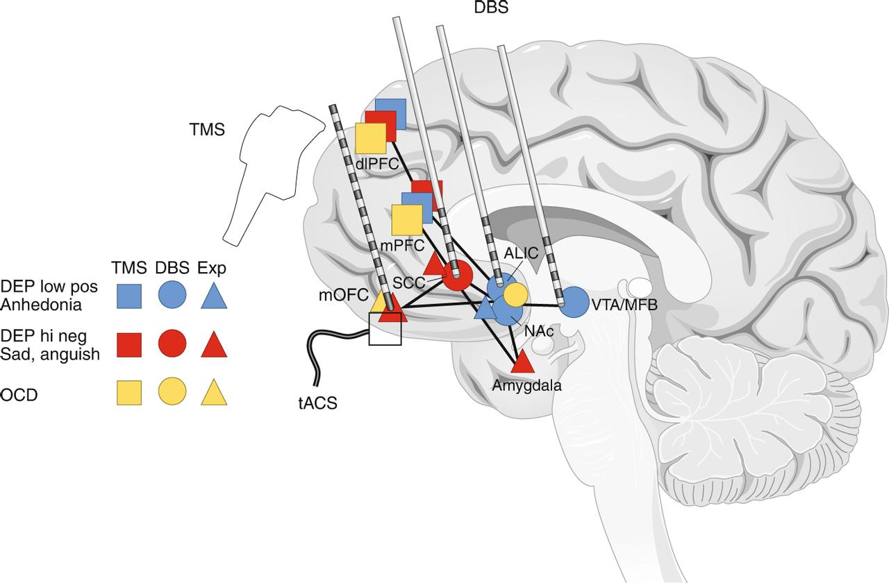 Уникальный мозговой имплантат, созданный на основе искусственного интеллекта, сможет вытащить из депрессии